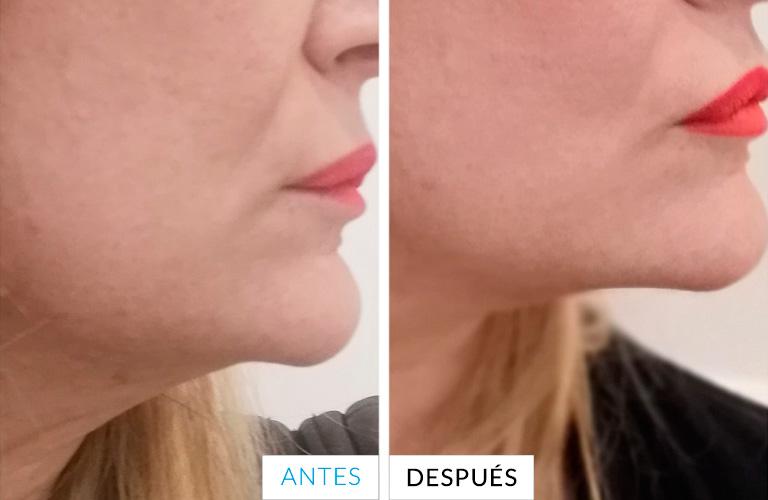 Antes y después del Thermage 2019 - Mercedes Silvestre