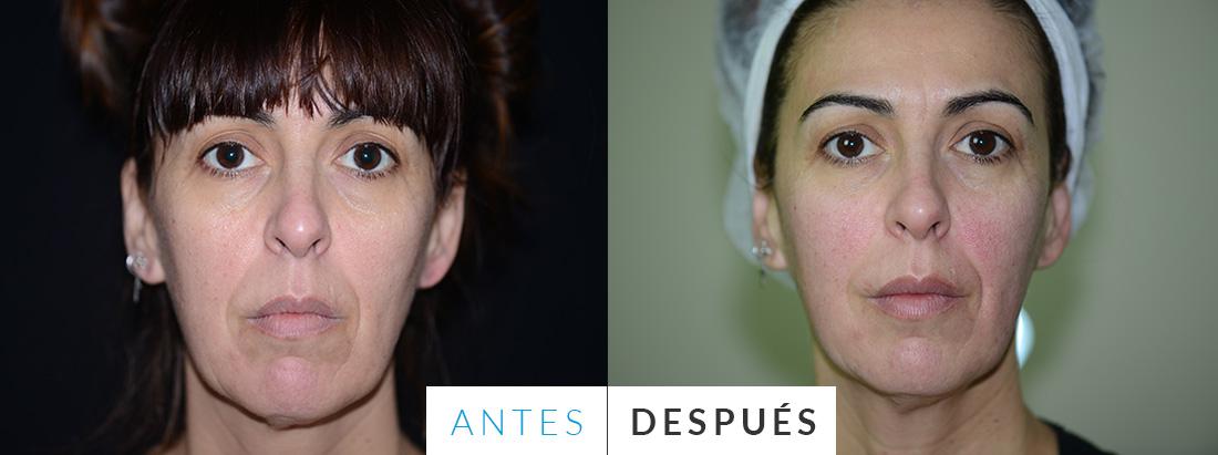 Antes y después del thermage - Mercedes Silvestre