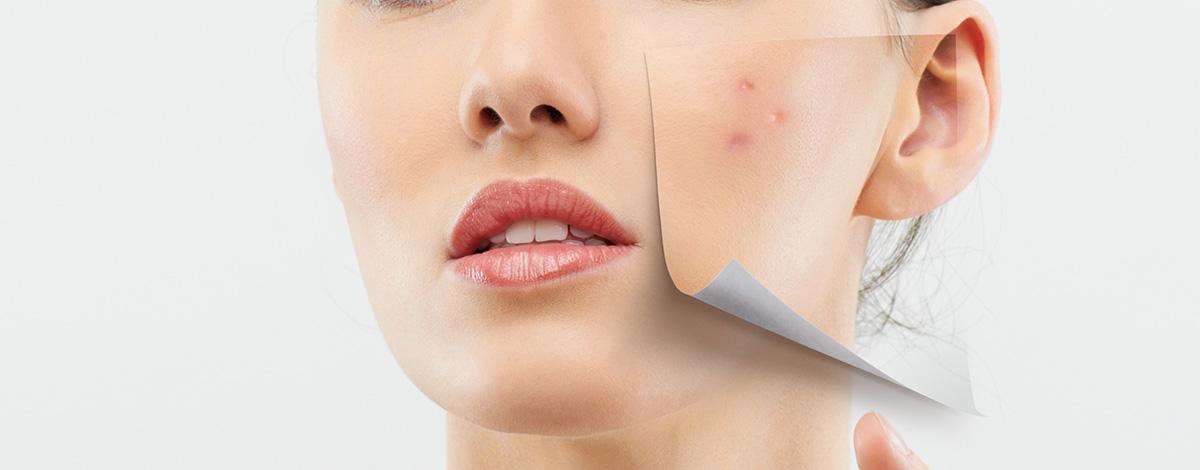 ¿Cómo tener una piel sin imperfecciones?