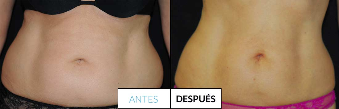 antes y despues liposonix img2 - mercedes silvestre
