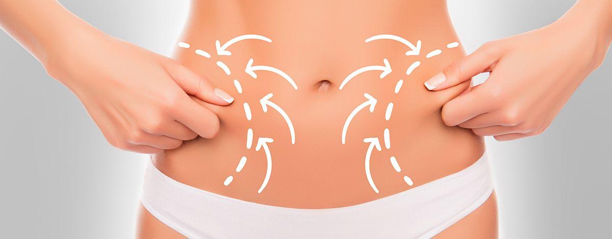 ¿Qué es HIFU? La técnica sin cirugía perfecta para la grasa