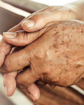¿Cómo quitar las manchas seniles de las manos? ¡Te lo explicamos!