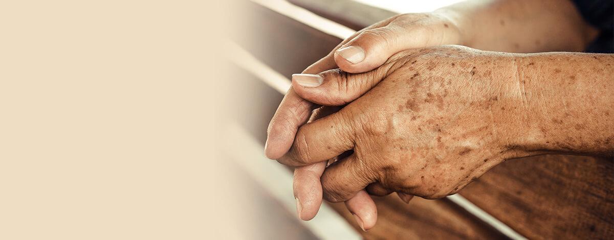 como quitar las manchas seniles de las manos - doctora mercedes silvestre