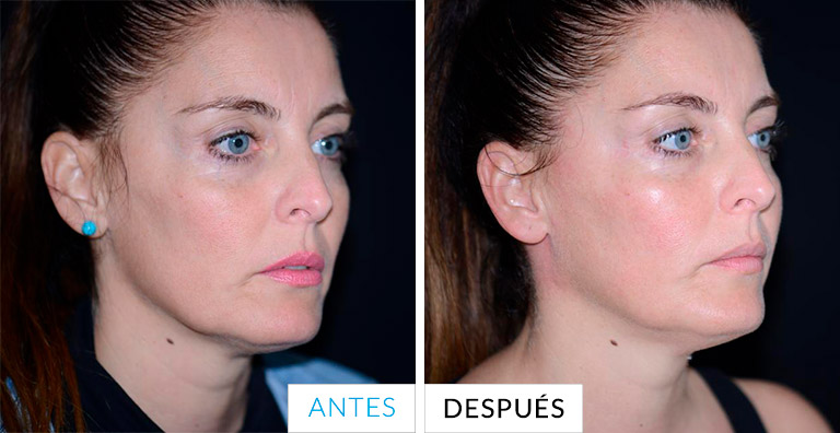 antes y despues thermage