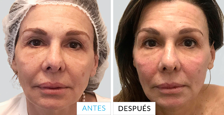 ANTES Y DESPUES Thermage junio - doctora mercedes silvestre