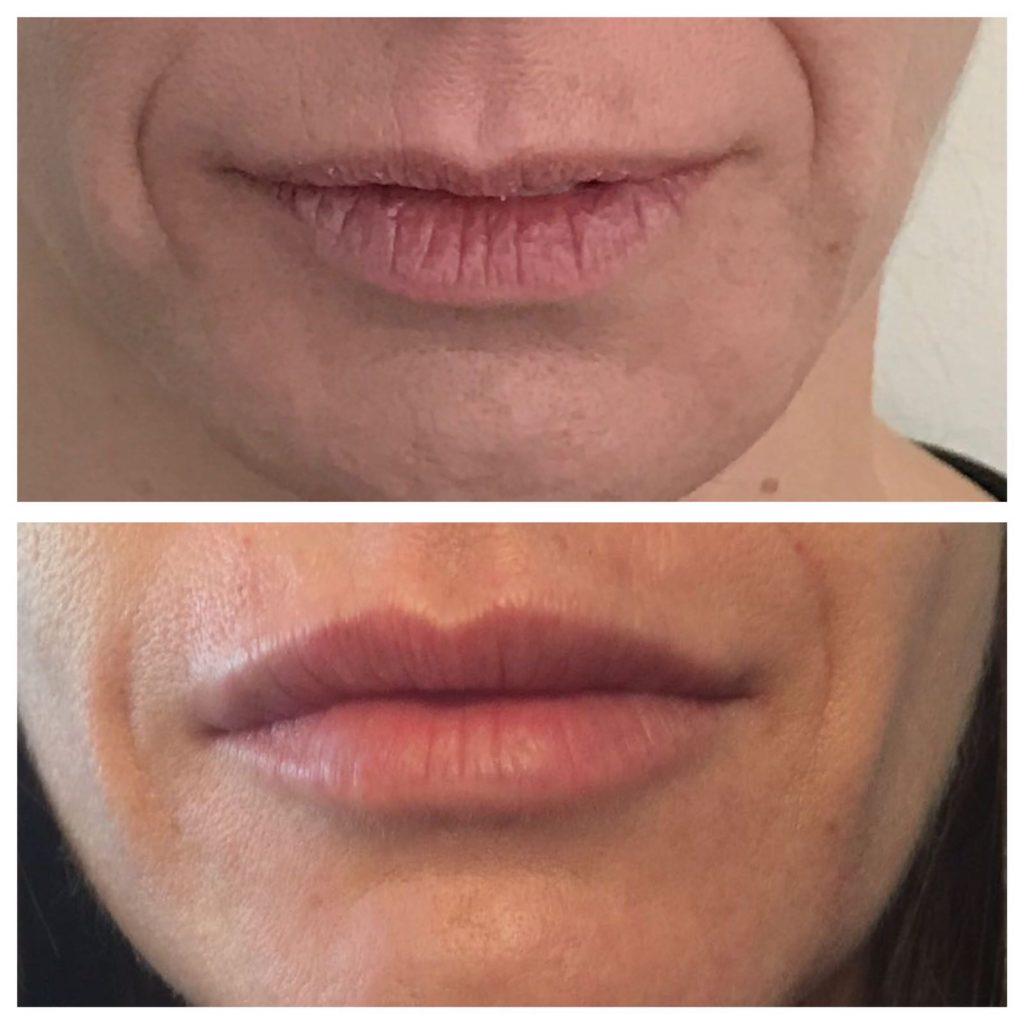 Antes y después - Ácido Hialurónico - Mercedes Silvestre