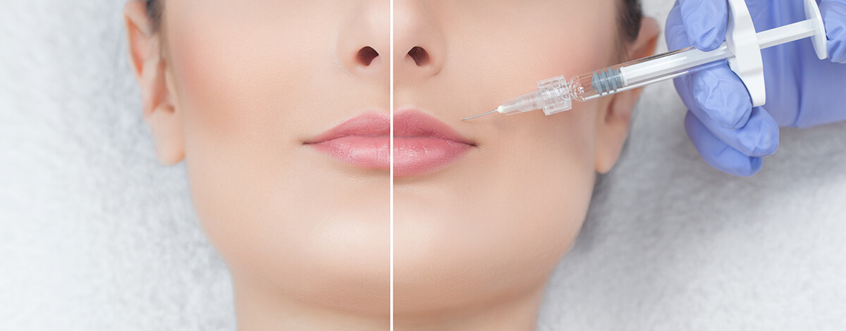 relleno de labios con acido hialuronico - doctora mercedes silvestre